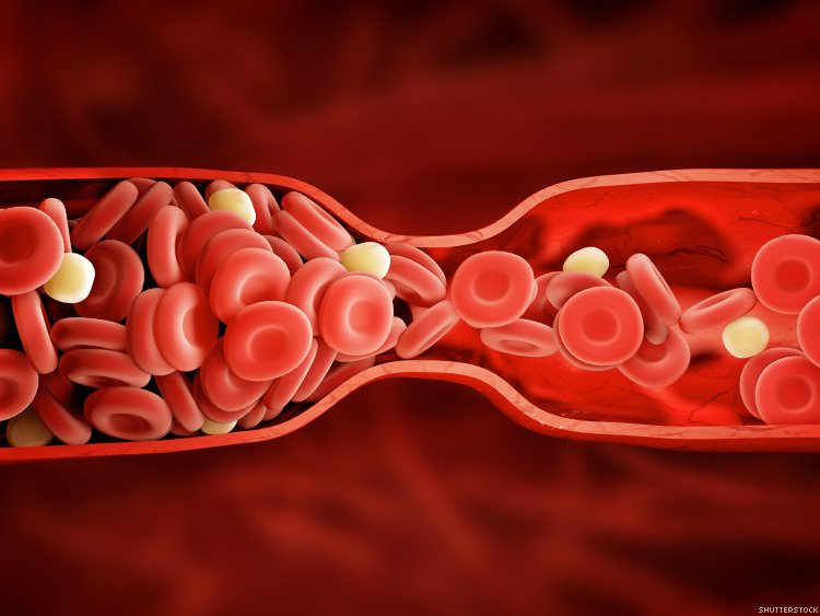 HIV-Positive People With Blood Clots Require No Difference in Warfarin Dosing