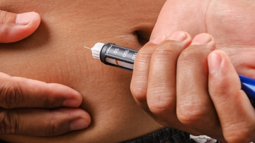 New Implants Show Promise in Treating Type 1 Diabetes