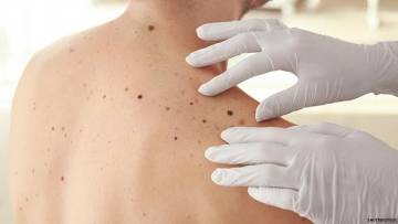 Researchers Can Now Detect Melanoma At Earlier Stages
