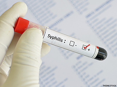 Gay and Bi Men Account for 75% of All Syphilis Cases