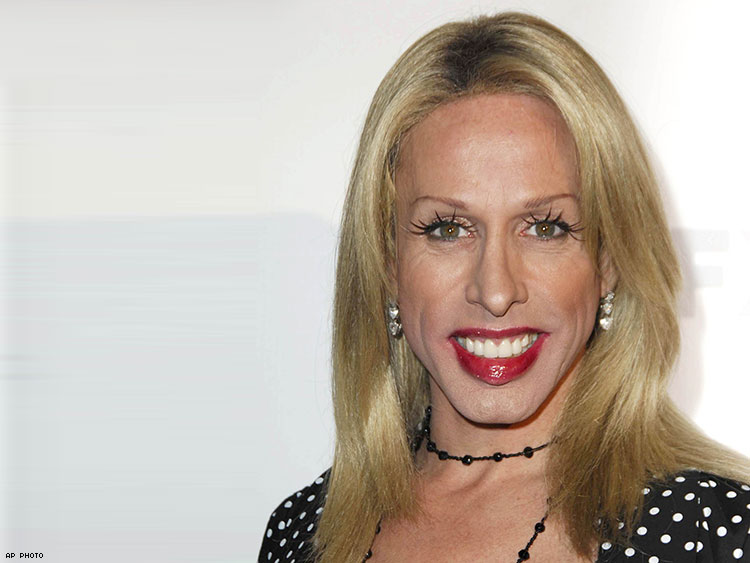 Patricia Arquette Shares Her Fondest Childhood Memories of Alexis