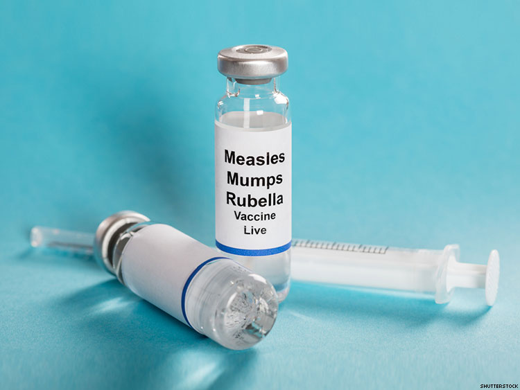 Los Angeles Mumps Outbreak Among MSM