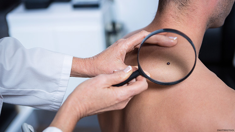 Skin Cancer HIV Connection