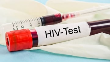 Is It Possible I Got a False Positive on My HIV Test