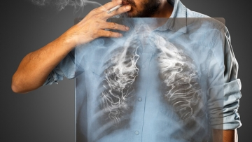 Poz People Are More Likely To Die Of Lung Cancer